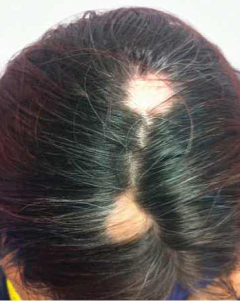 L-IUD caused hair loss