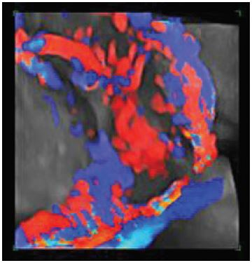 Figure 1b: 3D power Doppler: Newly formed blood vessels and lacunae.