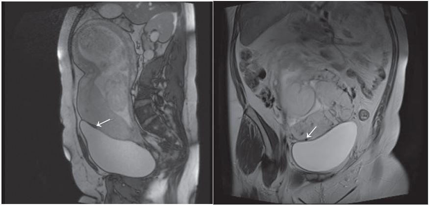 (Left) Sagital True FISP image showing placenta accreta at bladder/ placental interface (arrow). (Right) Coronal blade image showing placenta accreta at bladder placental interface.