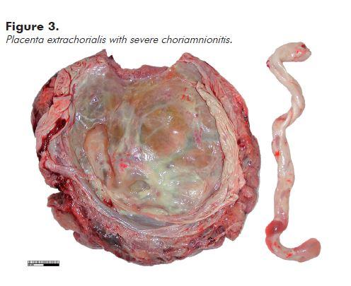 Figure 3. Placenta extrachorialis with severe choriamnionitis.