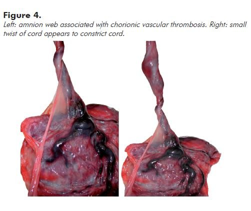 Figure 4. Left: amnion web associated with chorionic vascular thrombosis. Right: small twist of cord appears to constrict cord.