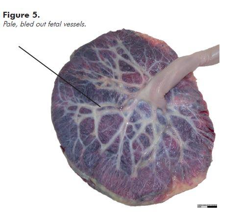 Figure 5. Pale, bled out fetal vessels.