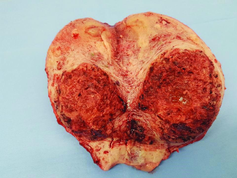 Figure 3. Uterus with myometrial invasion.