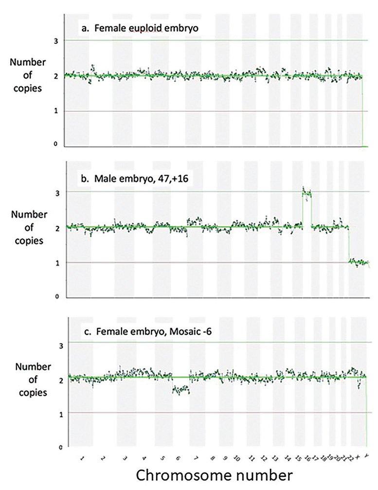 Figure 3. The readouts after next generation sequencing, showing the chromosome count for each chromosome for (a) a female euploid embryo (b) a male aneuploid embryo with an extra Chromosome 16 and (c) a female embryo mosaic for a missing Chromosome 6.